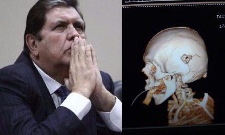 NO AGUANTÓ LA PRESIÓN | Alan García se disparó tras conocer la orden de detención preliminar (FOTOS)