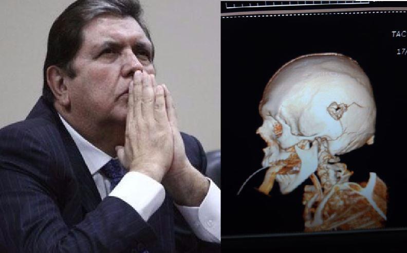 NO AGUANTÓ LA PRESIÓN   Alan García se disparó tras conocer la orden de detención preliminar (FOTOS)
